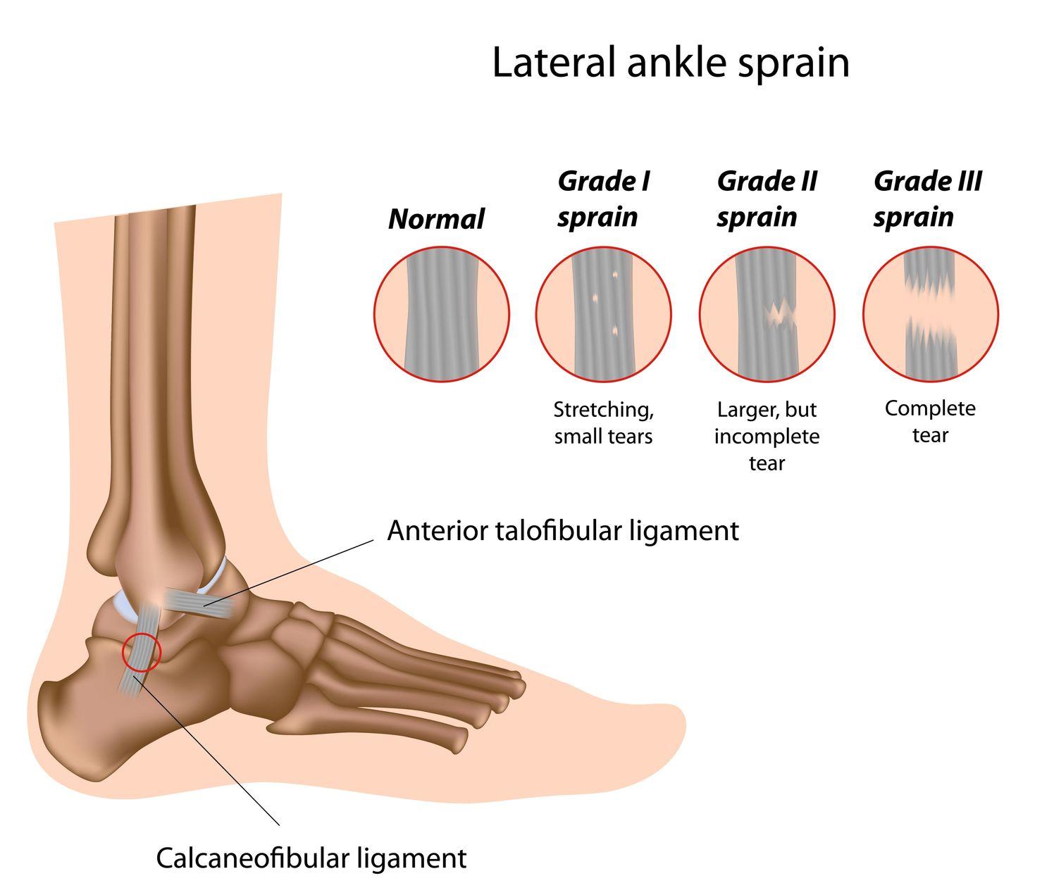 Ankle Sprain - Pure Health Osteopath Clinic