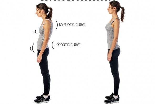 6 Self Help Tips for Posture Pain